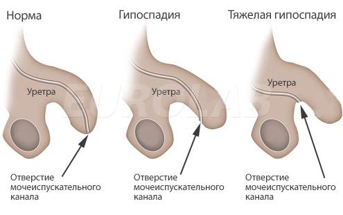 Стандартный размер член у мужчины